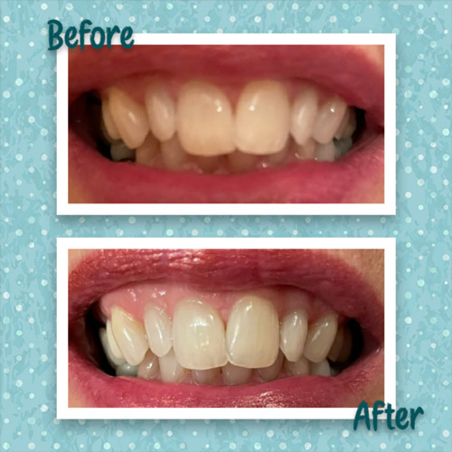 Before And After Teeth Whitening at Endermologie by Debbie